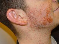 Шелушение кожных покровов