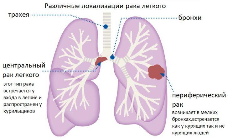 Центральный и периферический рак лёгкого (схема)
