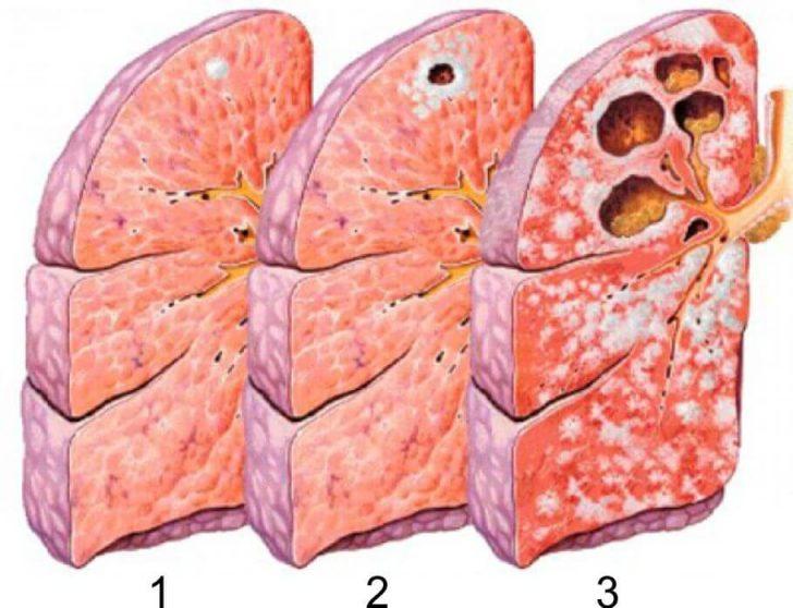 Стадии туберкулёза лёгких (схема)