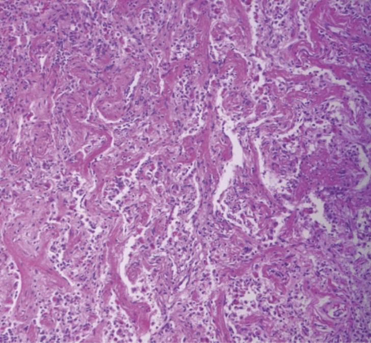 Интерстициальная пневмония (картина под микроскопом)