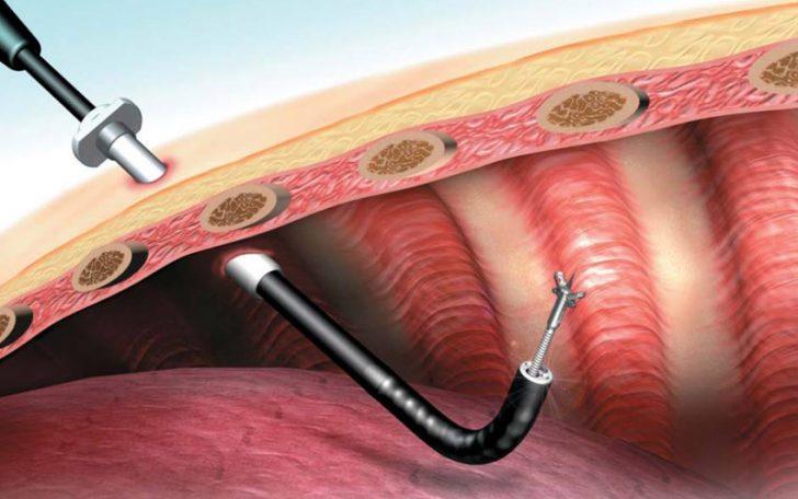 Торакоскопия (схема)
