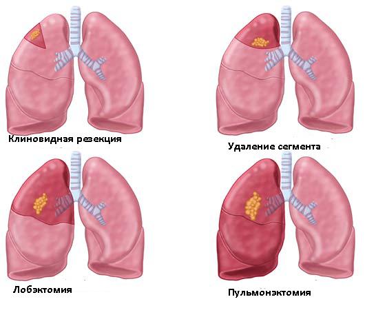 Вмешательства на лёгких (схема)