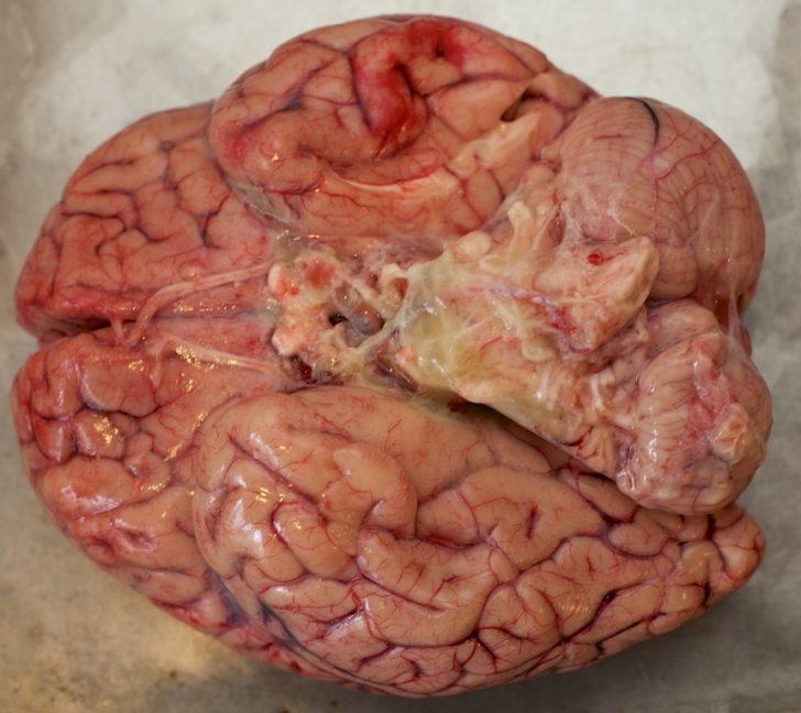Как выглядит мозг пациента с менингитом