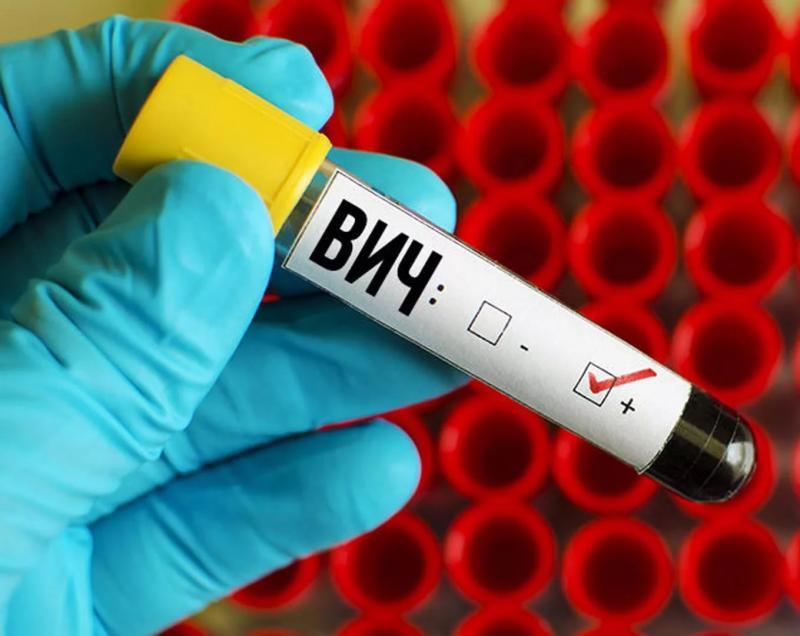 ВИЧ-инфекция: диагноз,не приговор
