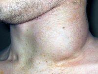 Увеличенный лимфоузел на шее