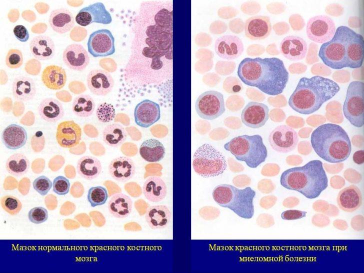 Мазок крови в норме и при миеломной болезни (картина под микроскопом)