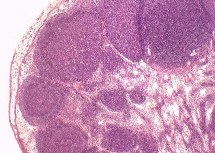 Лимфоузел (картина под микроскопом)