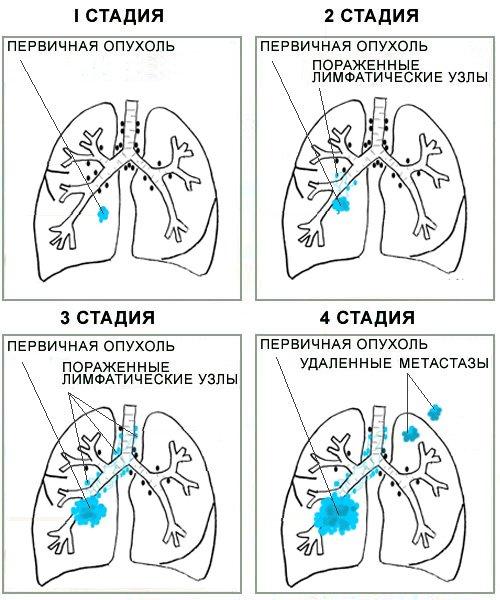 Стадии злокачественной опухоли (схема)
