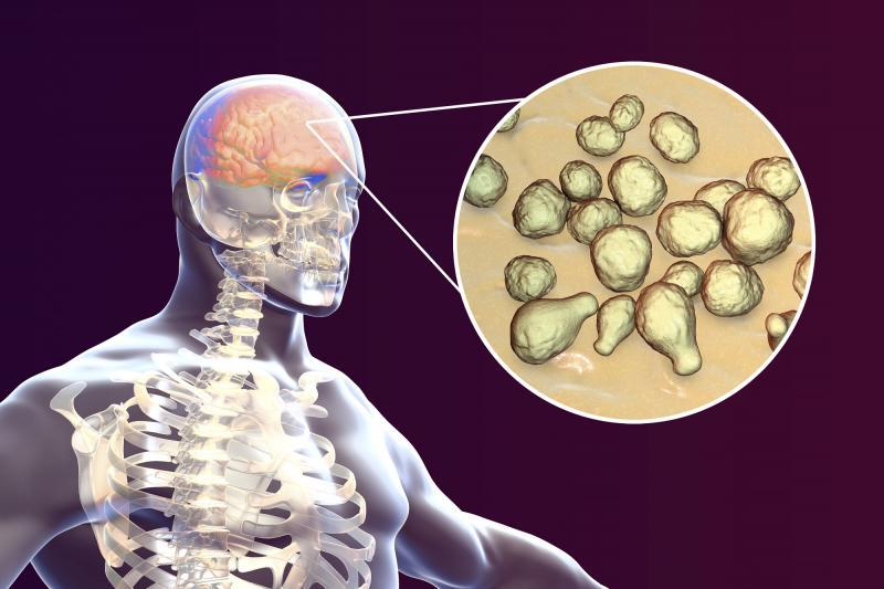 Гнойный менингит: как не пропустить начало инфекции