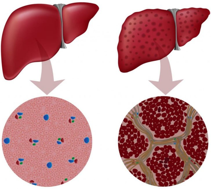 Здоровая печень и цирроз органа