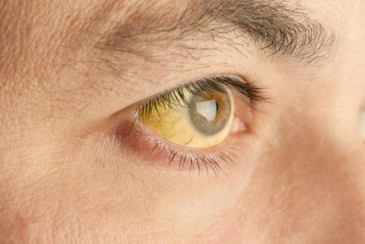 Пожелтение белков глаз