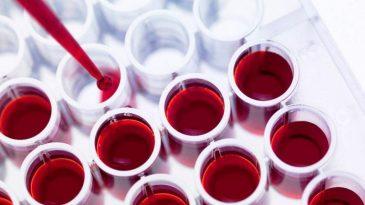 Анализ крови на мочевую кислоту