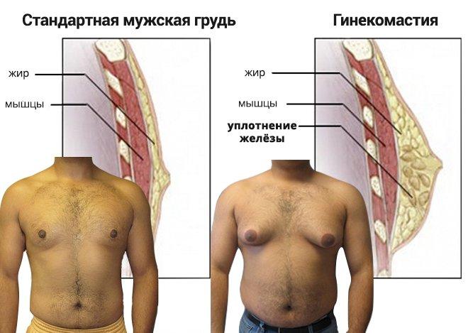 Нормальное и патологическое строение грудной железы у мужчин