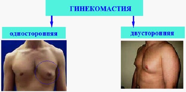 Разные виды гинекомастии