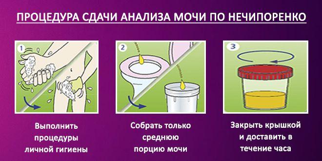 Инструкция по сбору мочи