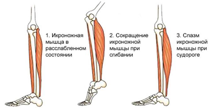 Состояние мышцы во время судороги