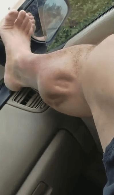 Локальная судорога икроножной мышцы