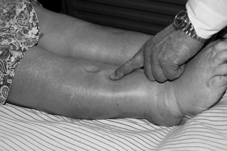 Отёки на ногах при сердечной недостаточности