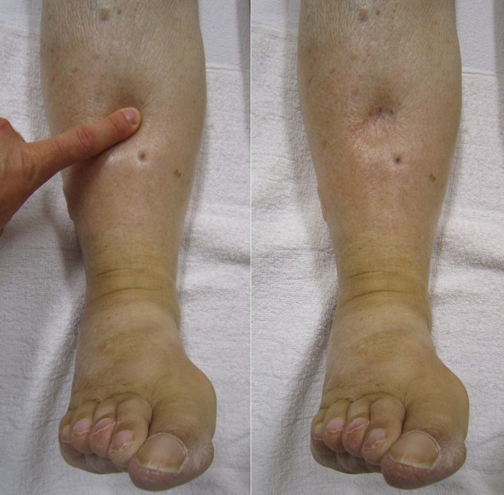 Отёки ног при нефротическом синдроме