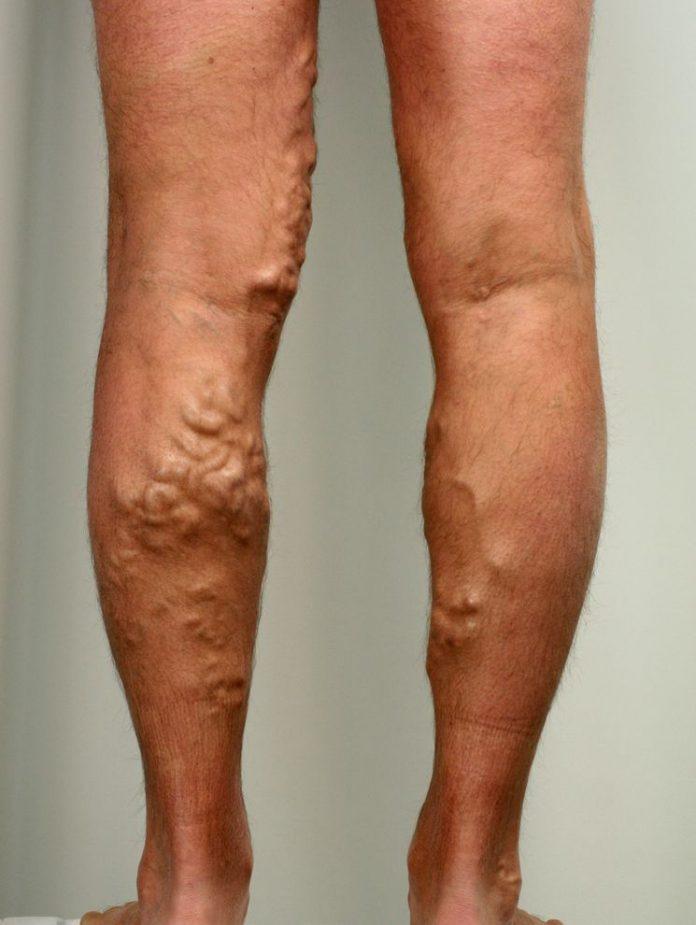 Варикозные вены на ногах