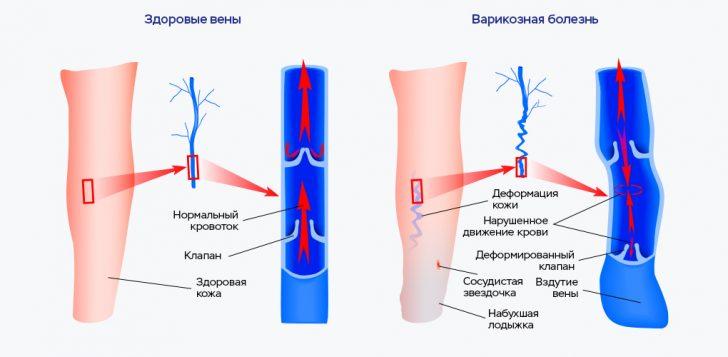 Варикозная болезнь вен нижних конечностей (схема)