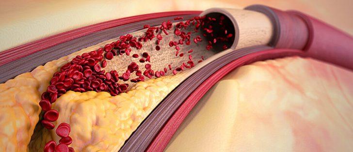 Атеросклеротическая бляшка в артерии (схема)