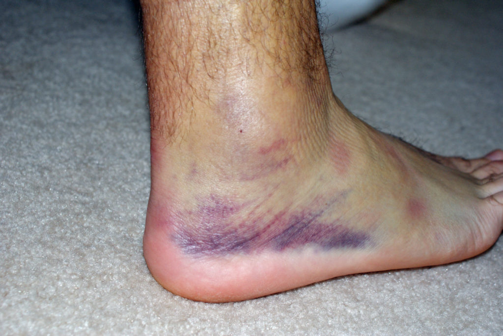 Картинки опухоль ноги