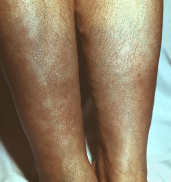 Микседема на ногах