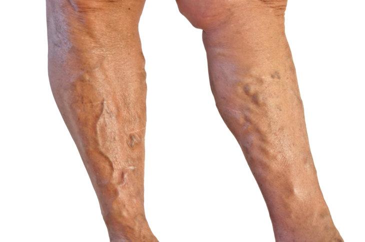 Судороги икроножных мышц: причины и лечение, что делать ... Вены на Ногах От Каблуков