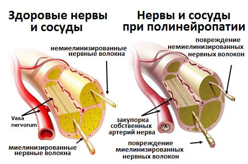 Здоровый и повреждённый нерв