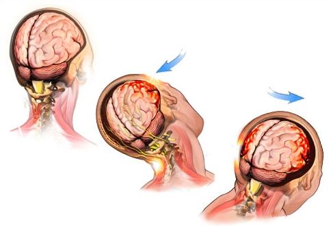 Механизм сотрясения мозга