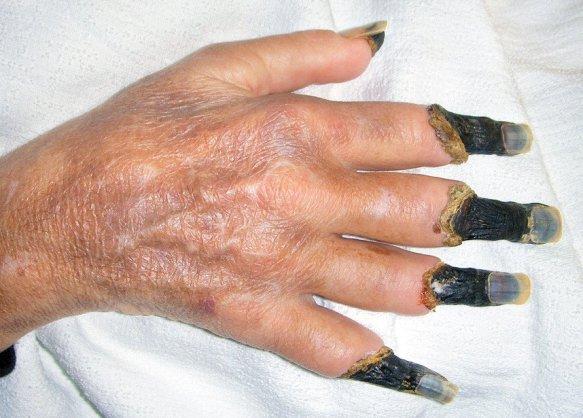 Сухой некроз пальцев кисти