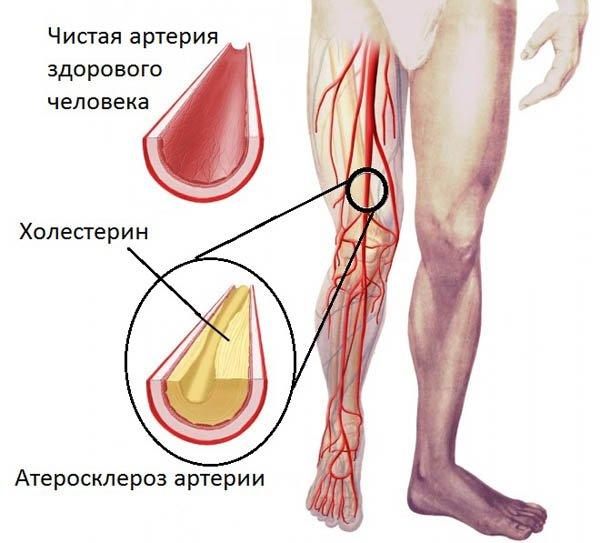 Атеросклероз артерий нижних конечностей (схема)