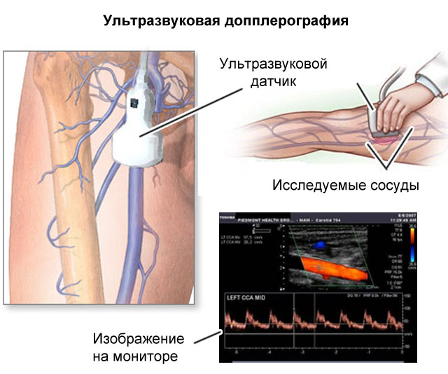 Ультразвуковое исследование сосудов (схема)