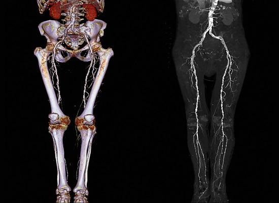 КТ-картина нижних конечностей
