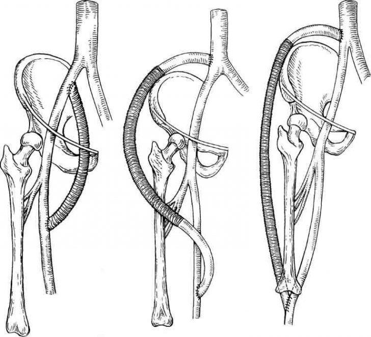 Аорто-бедренное шунтирование (схема)