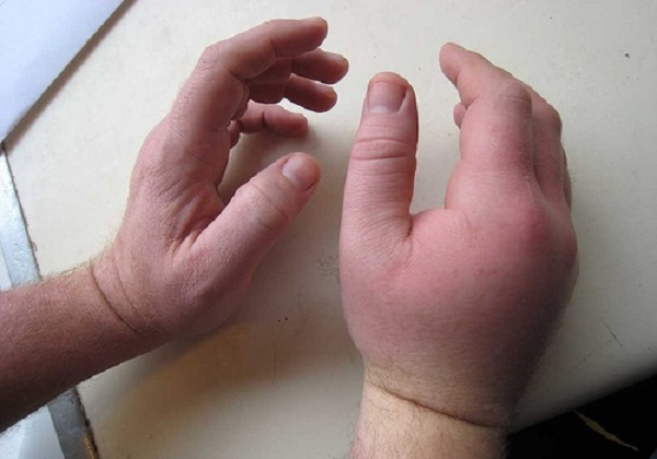 Отёчная правая рука мужчины
