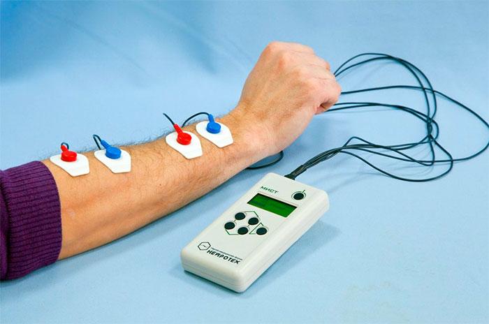 Аппарат для электромиостимуляции