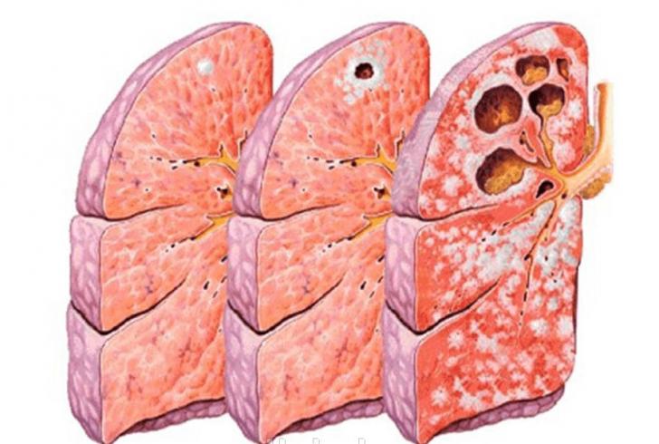 Туберкулёз лёгких (схема)
