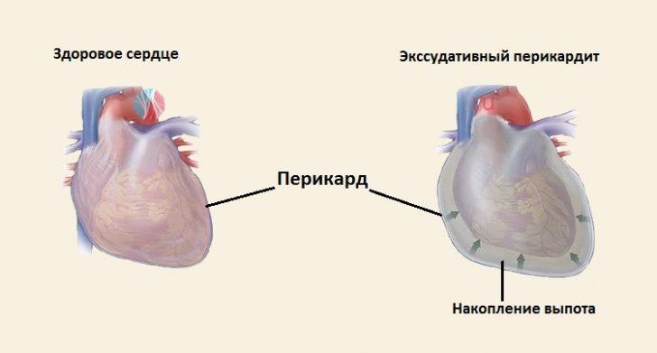 Перикардит (схема)