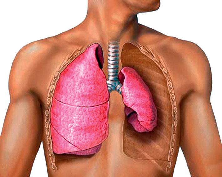 Пневмоторакс (схема)