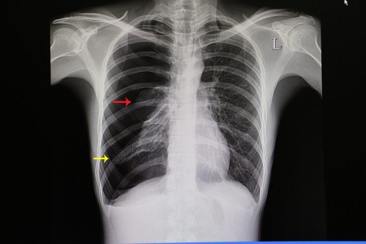 Пневмоторакс (рентгеновская картина)