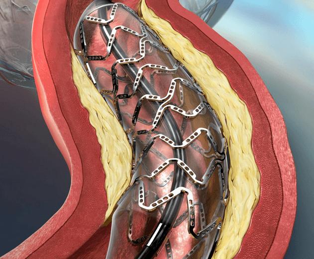 Коронарный стент (схема)
