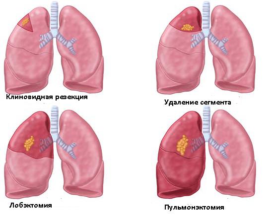 Операции на лёгком (схема)