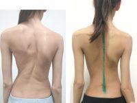 Сколиоз до и после хирургического вмешательства