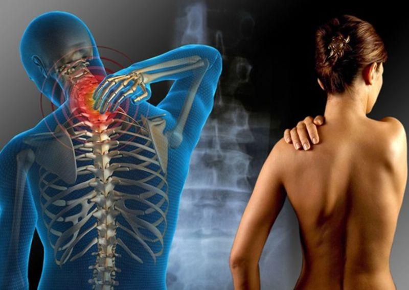 Смещение шейных позвонков: симптомы и методы лечения