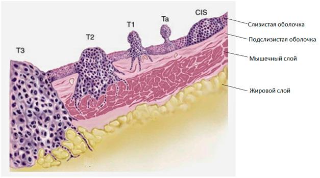 Фотография гистологического исследования среза стенки мочевого пузыря