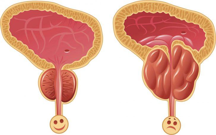 Предстательная железа в норме и увеличенная