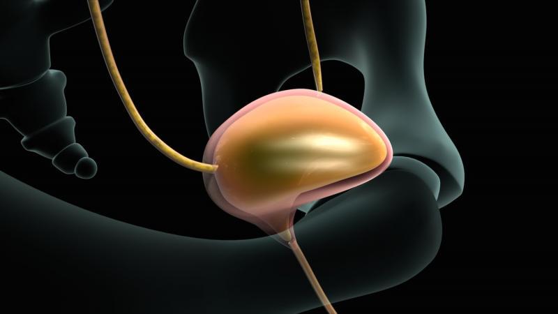 Цистография мочевого пузыря: важная диагностическая процедура