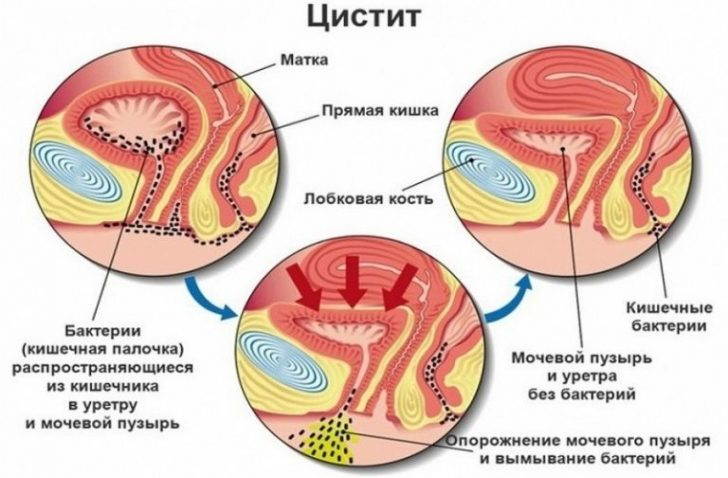 Восходящий путь инфицирования при цистите
